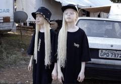 Близнецы-Альбиносы из Бразилии